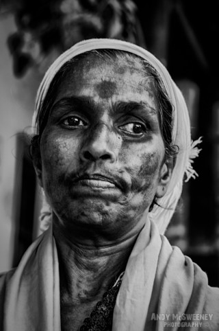 Intimate black and white portrait of an Indian lady with scars and bindi in South-India