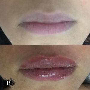 to show the before and after pictures pf needle-free lip fillers