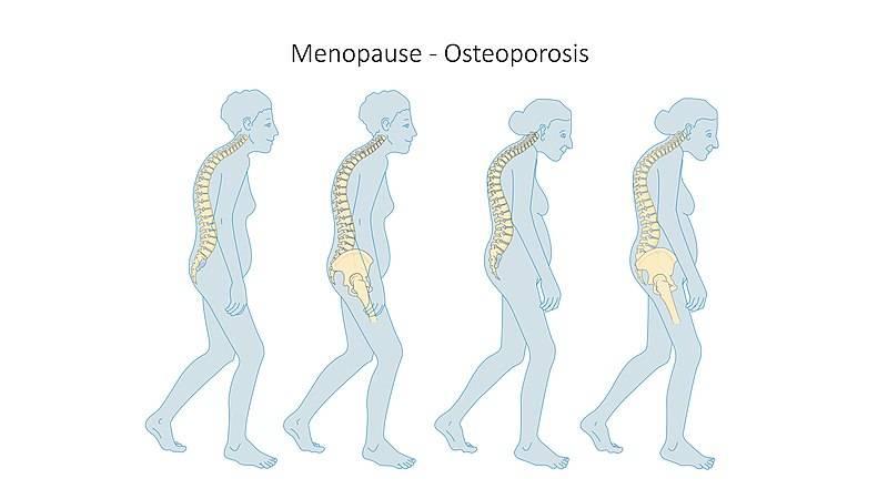 Bild visar vad som händer med den kvinnliga kroppen vid klimakteriet i fyra steg, osteoperos,