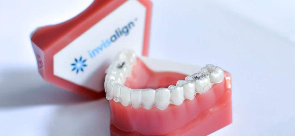 Invisalign Clinica Dental Sanchez Leon
