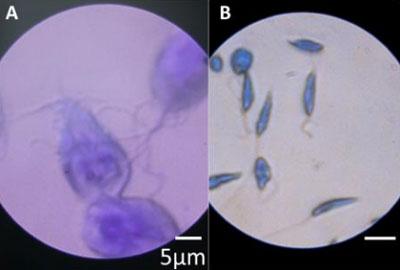 Two disease-causing microbes, Giardia lamblia (left) and Leishmania donovani (right), as seen through the folding microscope.