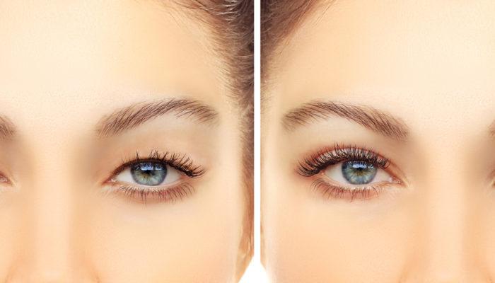 Asian Eyelid Surgery.Upper blepharoplasty.Correcting  the aging process