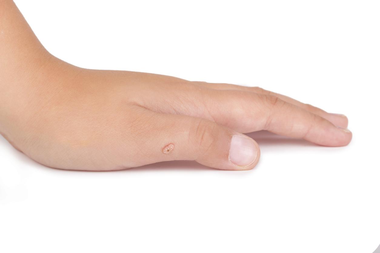 Vårtor på handen