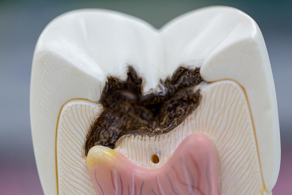 Betændelse i tandnerven