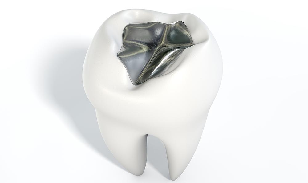 Sølvfyldning i tand