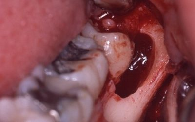 Vilken betydelse har den orala hälsan för utvecklingen av komplikationer efter strålningsterapi mot huvud- och halsregionen?