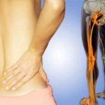 Iskiassmerter i graviditeten