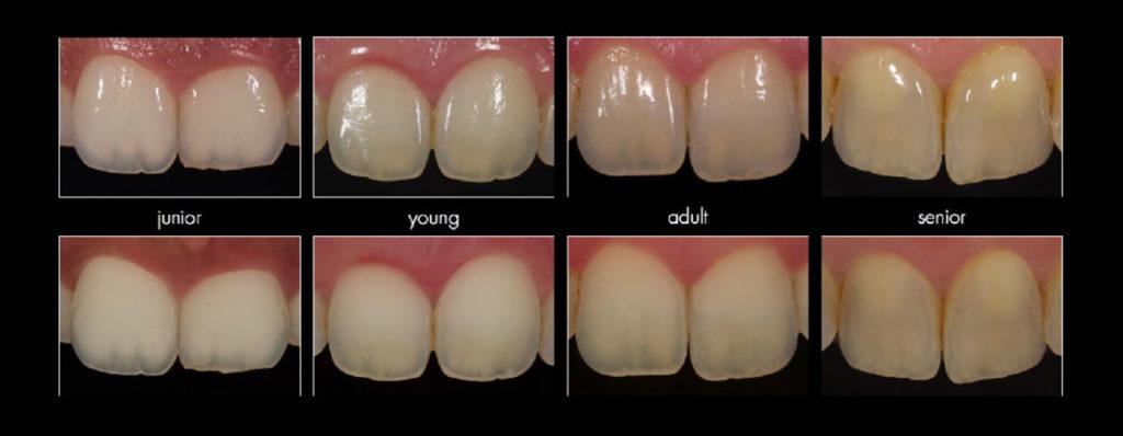 tänders struktur förändras med tiden