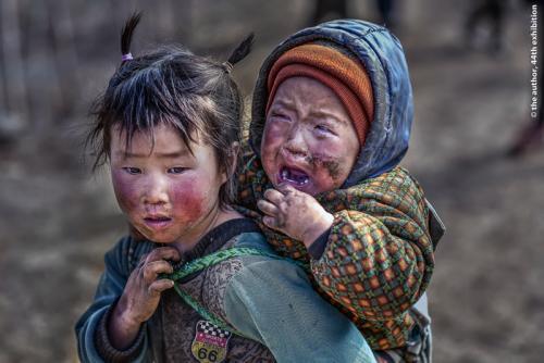 SPSSilver Medal -Hard Childhood 1-HsinHsin Liu-Taiwan