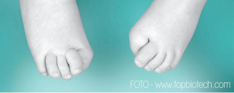 Fibrodysplasia-ossificans-progressiva-FOP Fibrodysplasia Ossificans Progressiva