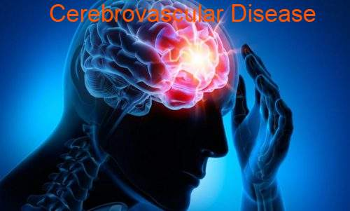 Cerebrovascular Disease Symptoms, Treatment, Causes