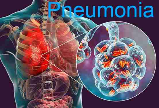 Pneumonia Vaccine, Prevention, Causes, Symptoms