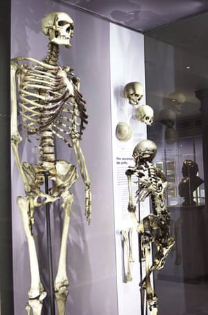 The skeleton of Charles Bryne on display at the Hnterian Museum in 2005.