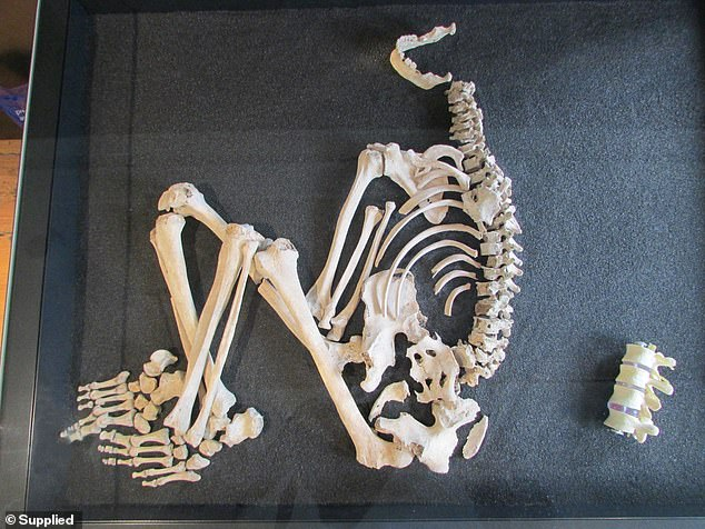 Pictured, the skeleton of an Iron Age man with signs of tuberculosis in his lower spine at the Museum of East Dorset. To the right of the skeleton is a replica of the same part of the spine of a healthy person. The man would have needed to use a stick or crutch. His Iron Age community must have cared for him, despite his illness, or he would not have survived for so long