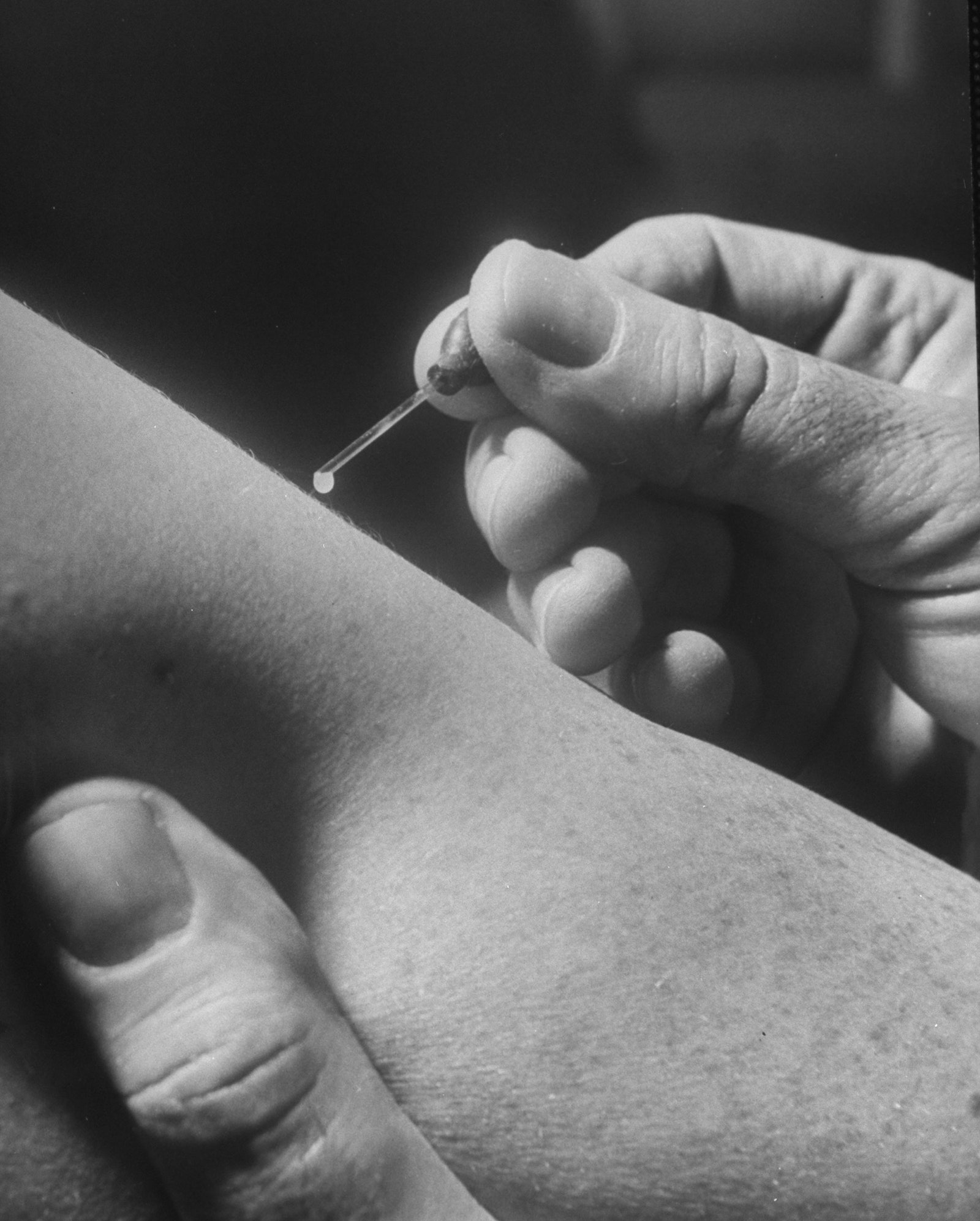 Close up of a scientist administering the smallpox vaccine