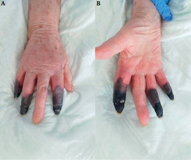 Gruesome pictures published in a medical journal showed how the unidentified 86-year-old's digits turned black