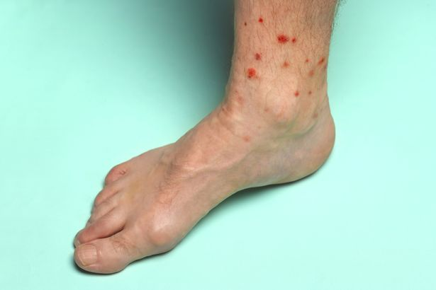 Adult man's naked foot covered with red raw insect bites