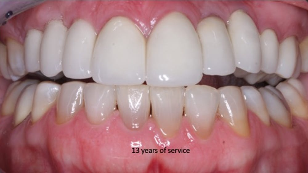 Figure 1: Which crowns are over implants, and which crowns are over natural teeth? If every aspect of the respective procedures is accomplished adequately, it is impossible to tell the difference. At the time of this slide, the treatment has served for 13 years, and the implant-supported restorations and surrounding gingival tissues are similar.
