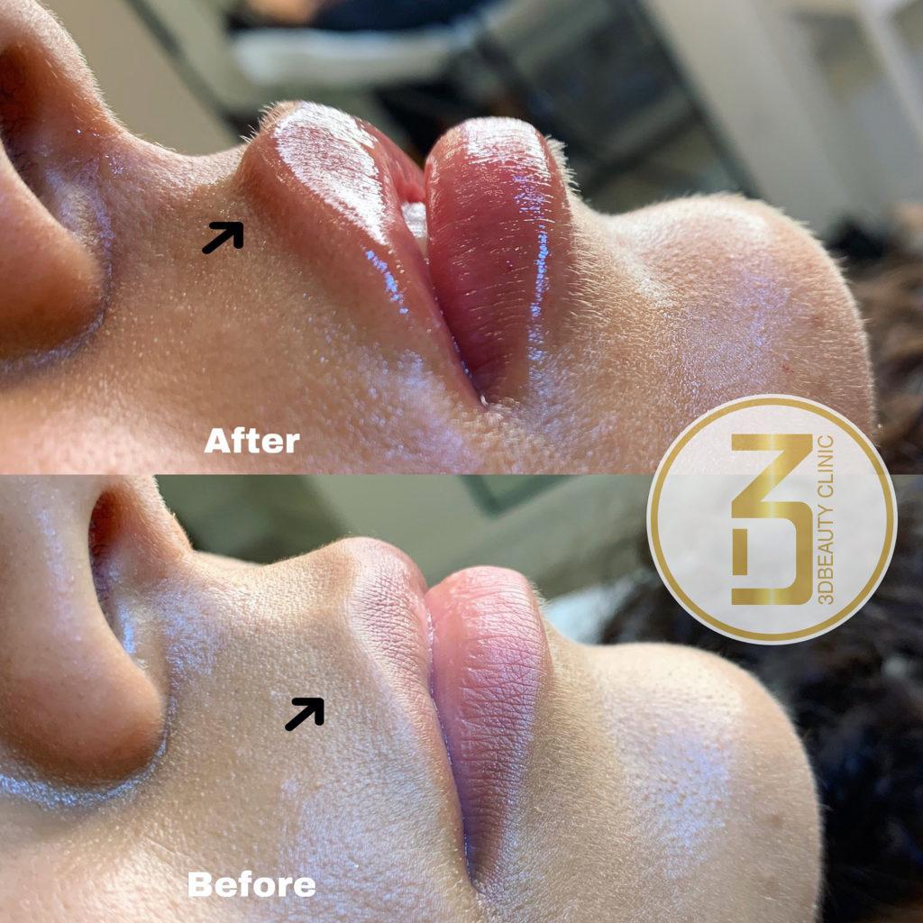 Fillers Läppar | Läpp förstorning och korrigering enligt dina önskemål | Olika läppstilar | Russian lips