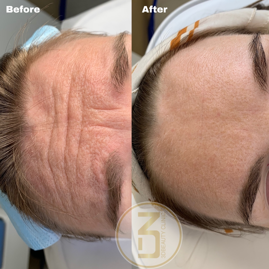 Botox - Glabellar lines (argrynkan) & frontalis lines (panna)