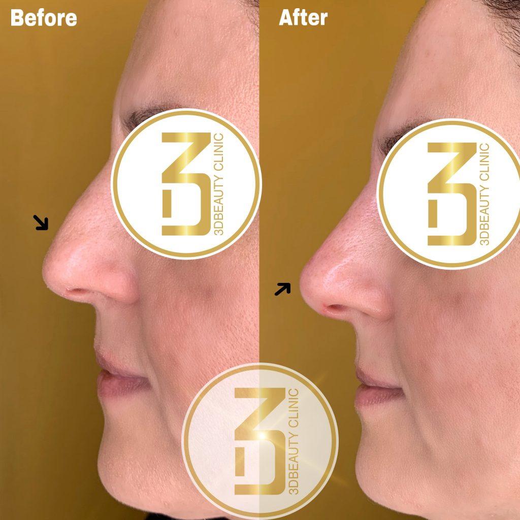 Näskorrigering i form av lyft och utjämning av näsryggen