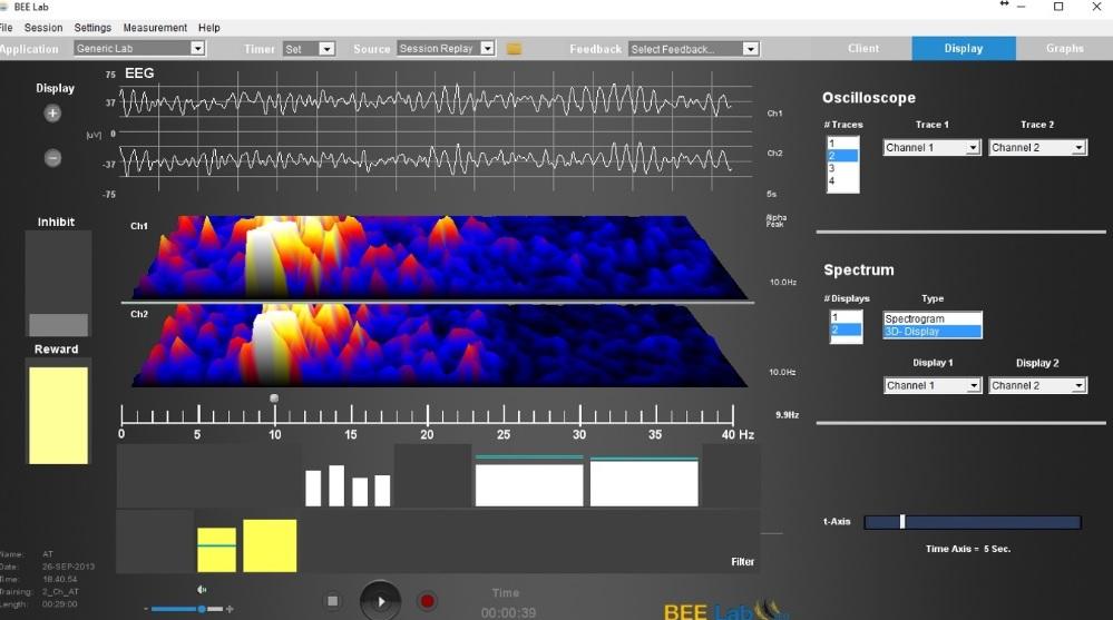 ILF neurofeedback BEELAB Neurofeedback SOFTWARE