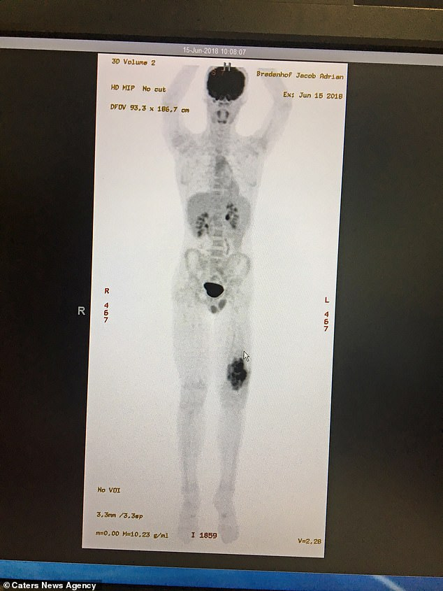 Scans revealing how the osteosarcomas had ravaged his femur and required amputation - any movement risked snapping the bone