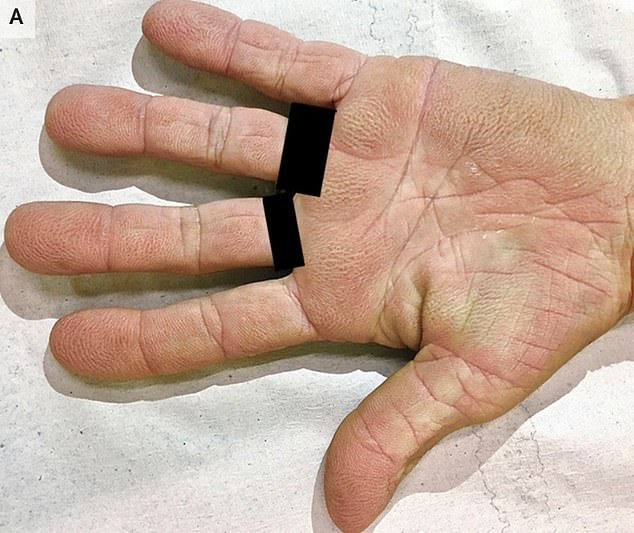 A 73-year-old woman's velvety 'tripe palms' (pictured) turned out to be a sign of lung cancer