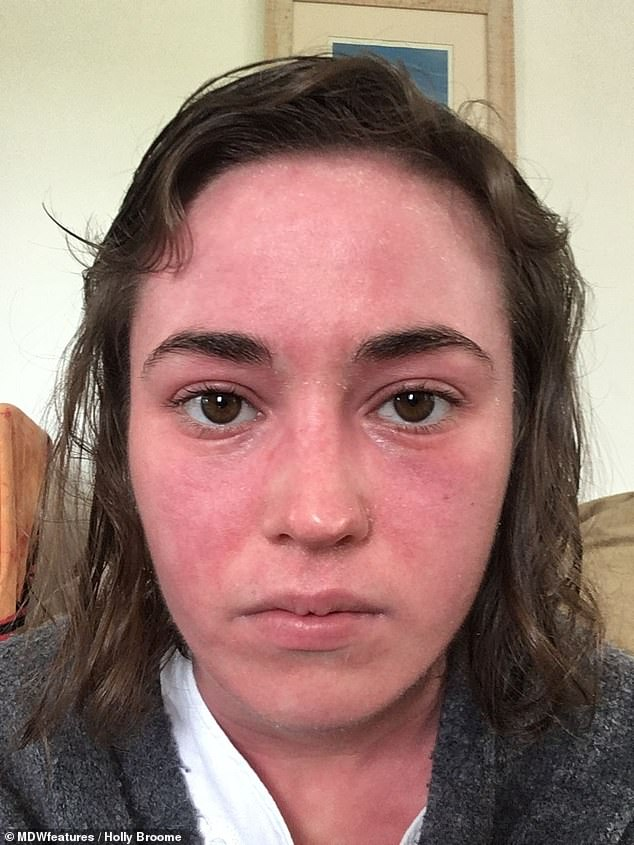 Soon the eczema covered 70 per cent of Ms Broome's skin, she said. Pictured on June 2018 after stopping steroid creams which no longer worked