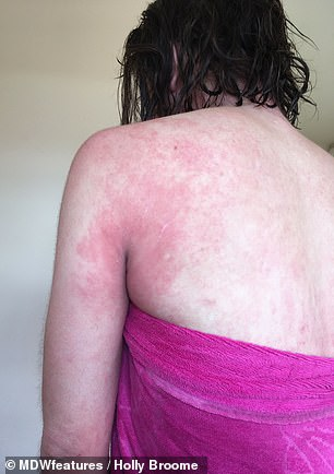 Ms Broome was prescribed stronger steroid creams which helped for a short period of time