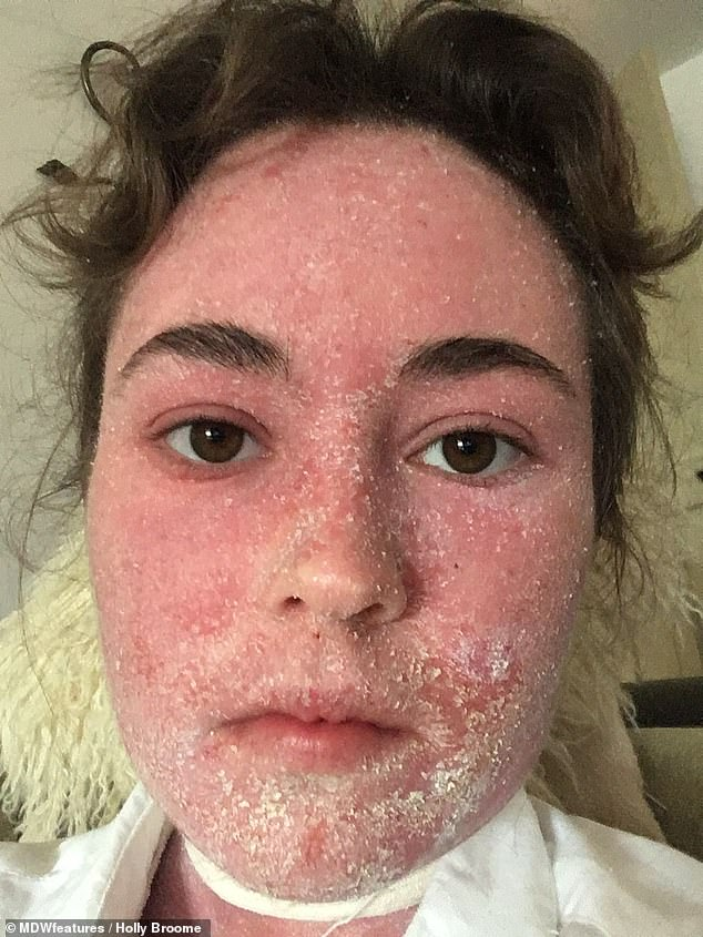 Ms Broome started no moisture therapy (NMT) in June 2018 (pictured) which involves avoiding any form of moisture in the aim of helping the skin produce its own moisture