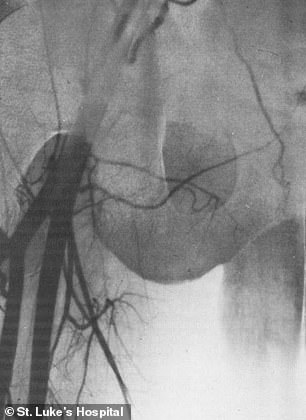 There is not yet a case study on the latest transplant. Images from an earlier transplant show the connection of donor and recipient arteries feeding the testicle