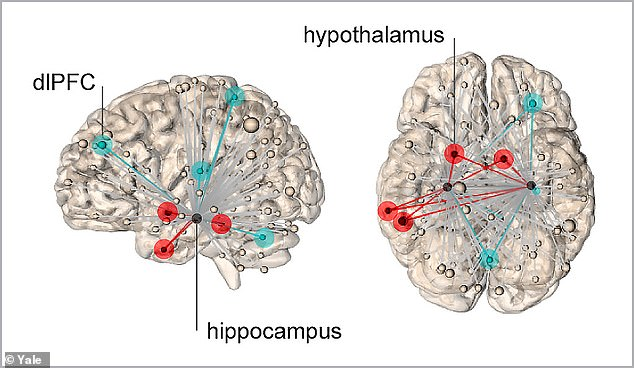 Brain-scanning was used to track the source of psychological stress induced by a series of evocative images shown to 30 volunteers. It found the origin of stress came from a region called the hippocampus. If the neural connections reached the hypothalamus (right), the participants felt highly stressed. If however it reached the dorsal lateral frontal cortex (dIPFC), left, then this quashed the response and regulated the stress experienced