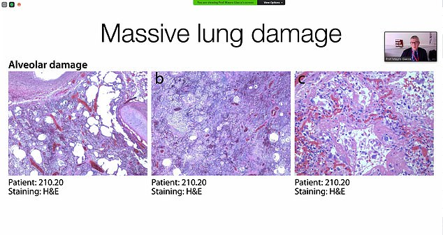 Studies on patients who died from the virus in Trieste, Italy, have revealed large sections of their lungs were replaced with fibrous tissue (shown). This may cause 'long Covid'