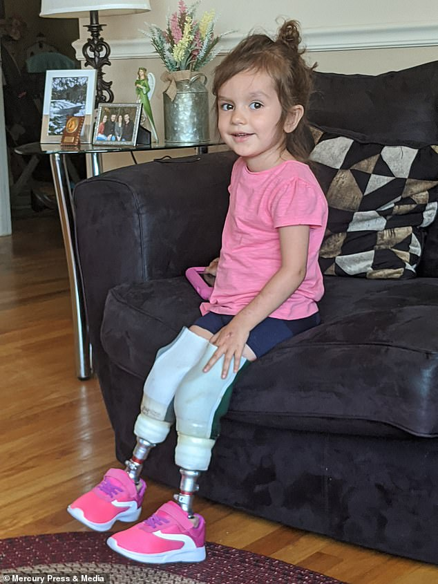 Riley, now three, had both her legs amputated in January this year but in May got her first pair of prosthetic legs
