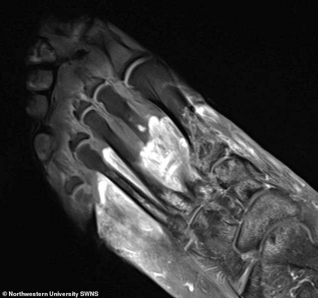 Researchers have warned that Covid-19 can cause long-term muscle and joint issues, including arthritis, gangrene and 'Covid toes'. In this scan, the grey part of the foot is devitalised tissue (gangrene)