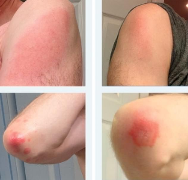 The letter to the NEJM included case studies of 12 patients who experienced a rash from the jab. Three patients had the same reaction after their second dose, while three had a reaction of lesser severity
