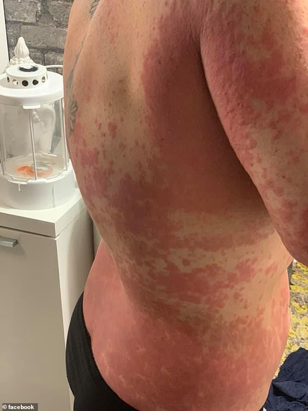 The rash also spread across Ms King's back after she received the vaccine