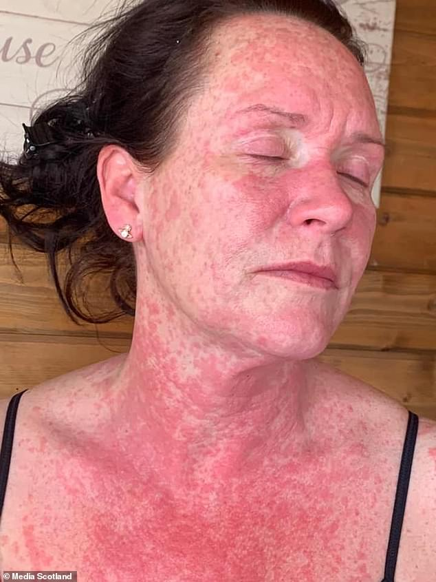 Leigh King, a 41-year-old hairdresser from North Lanarkshire, said her skin erupted into rashes almost immediately after she got the AstraZeneca vaccine. Britain's drug regulator lists rashes as a possible side-effect of the coronavirus vaccine