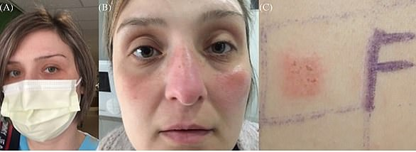 Pictured, (A) a nurse, wearing a polypropylene surgical mask, (B) who developed rosacea‐like allergic contact dermatitis from formaldehyde contained in the mask; (C) the positive patch test to formaldehyde revealing her allergy to the chemical