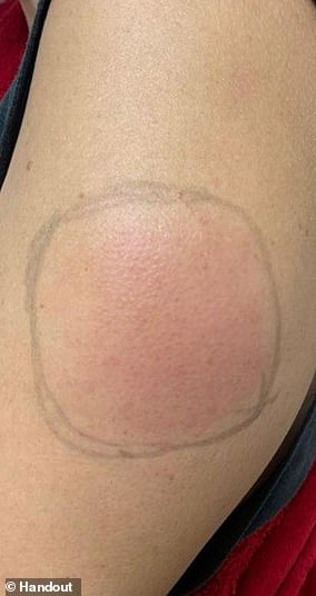 Another rare reaction, but only in Moderna patients, is 'Covid arm,' in which people experience itchy and swollen skin, sometimes accompanied by red lumps