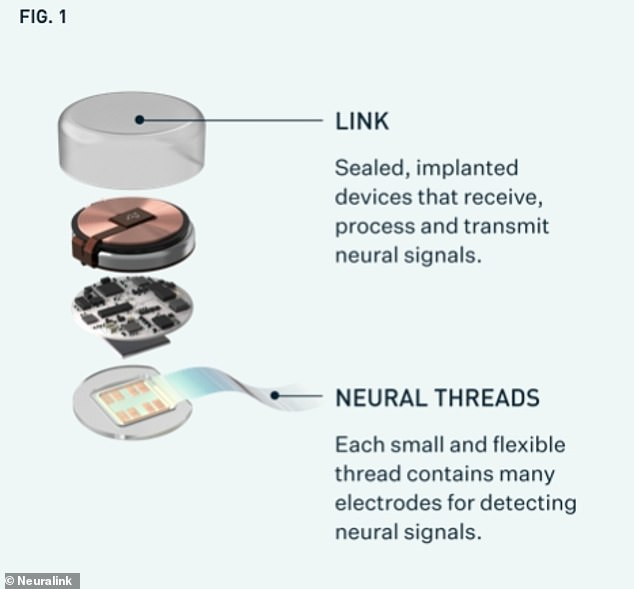 The N1 Link, implanted in the monkeys brain contains electrodes that detect neural signals coming from the various cortexes of the brain