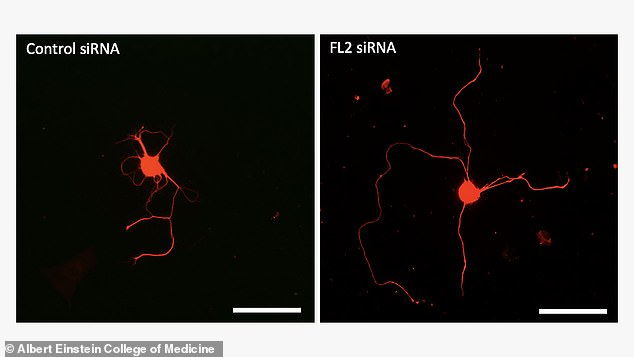 These microscope images show how damaged nerves grow back more successfully when treated with the gene therapy (right) compared to ones that are left to regrow naturally (left)