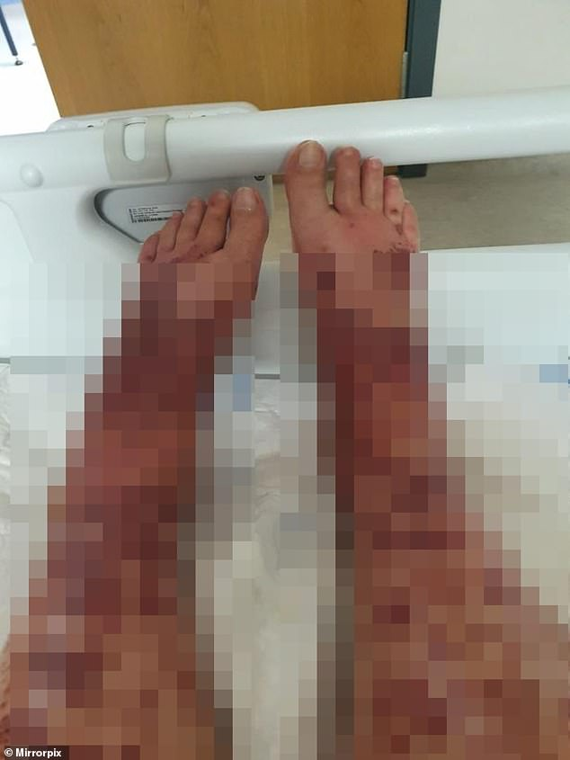 Ms Beuckmann, who works in retail, said at one point she feared her legs might have to be amputated. But she is now on the mend at home after being discharged from hospital