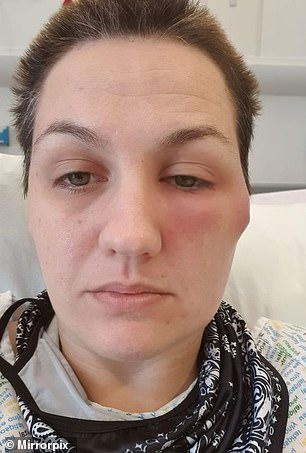 The mother-of-one said she was on the wards for 16 days, and doctors told her she had suffered a reaction to the AstraZeneca vaccine