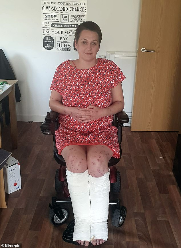 Ms Beuckmann said she is wheelchair bound while her wounds heal
