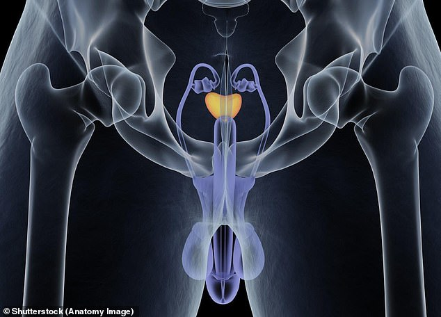 Many men who require drastic treatment to remove their prostate, which sits in the pelvis and is about the size of a ping pong ball (highlighted in yellow), are left with lifelong problems (stock image)