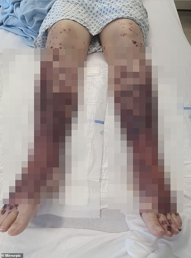 Sarah Beuckmann, 34, from Glasgow, claims her legs, arms, hands and face erupted into blisters and rashes after she got the AstraZeneca vaccine