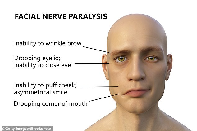 Bell's palsy is a nerve condition causing a patient to experience muscle weakness in half of their face