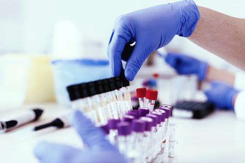 An anonymous lab worker handles drug samples